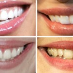 Name That Celebrity Smile