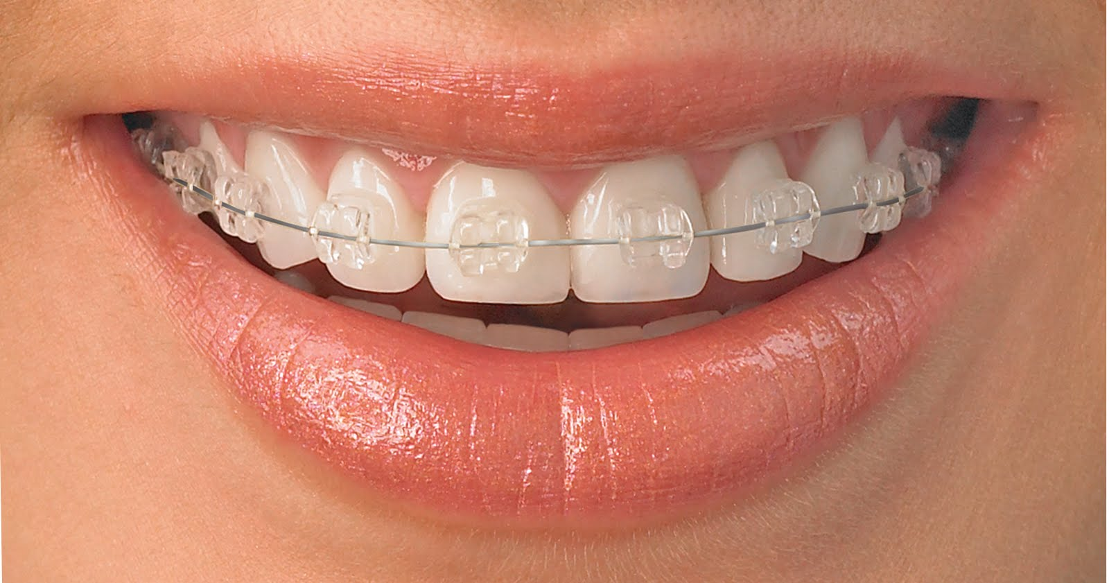 Braces In Mouth 119